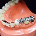どうして歯医者で働く人の9割は銀歯を選ばないのか?